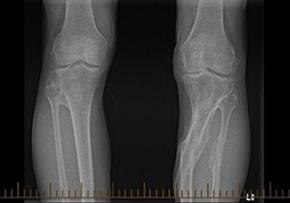 legs-bones